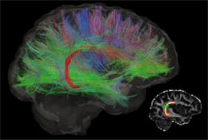 New Paper Published in Brain and Cognition